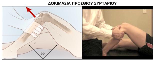 ρήξη-πρόσθιου-χιαστού-συνδέσμου-(εικόνα)-7