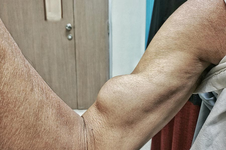 Πάθηση Δικεφάλου - Popeye Muscle